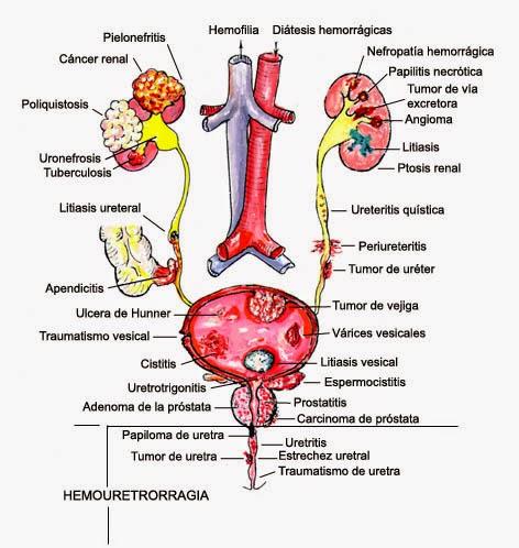 prostatitis por goteo posterior al vacío